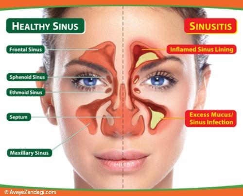 برای سردرد سینوسی این داروهای خانگی مفیدند