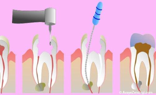 عصب کشی، دندان را شکننده می کند؟